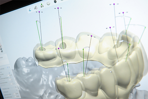 dental technical software
